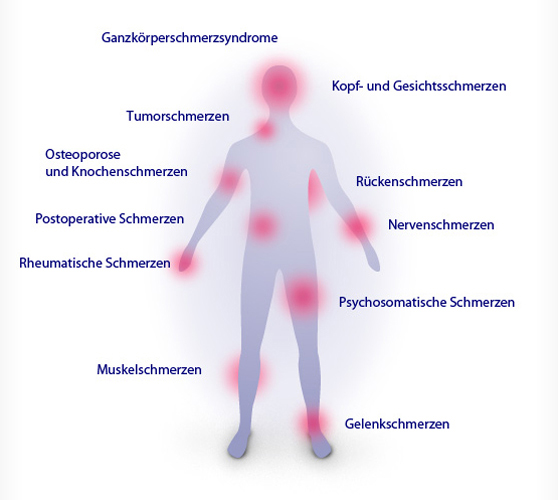 Schmerzarten - Schmerzpraxis Böblingen