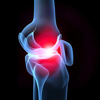 Muskel- und Gelenkschmerzen « Schmerzpraxis Böblingen